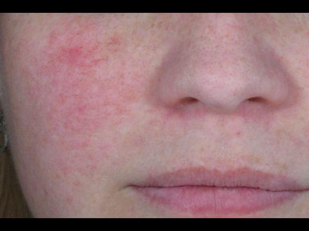 Health & Beauty: How to deal with your rosacea