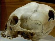 Peru: Archaeologists investigate ancient cranial surgery