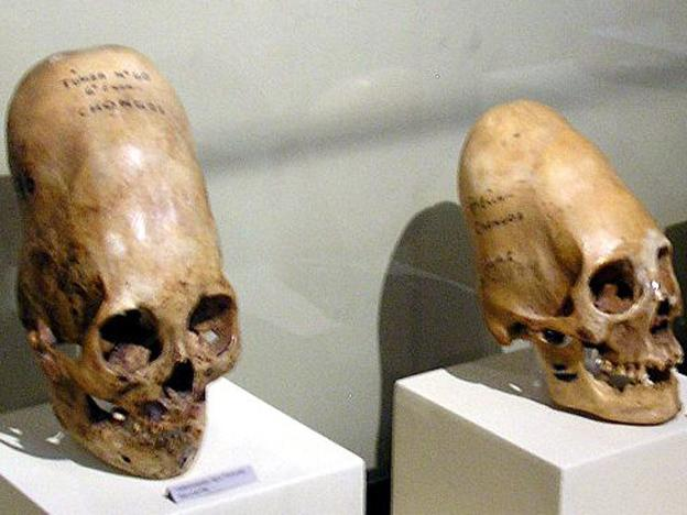 "Internet abuzz with news of ""alien"" Peruvian Paracas skulls"
