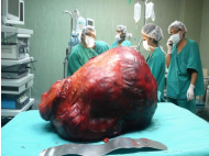 Surgeons successfully remove massive tumour from Tacna woman