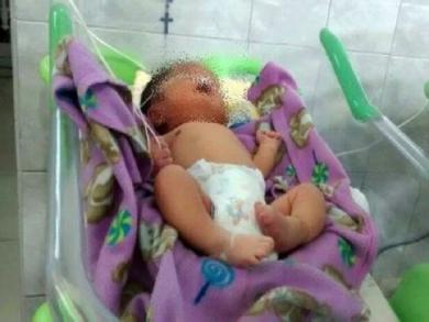 Peru: Baby born with nose malformation to have cosmetic surgery